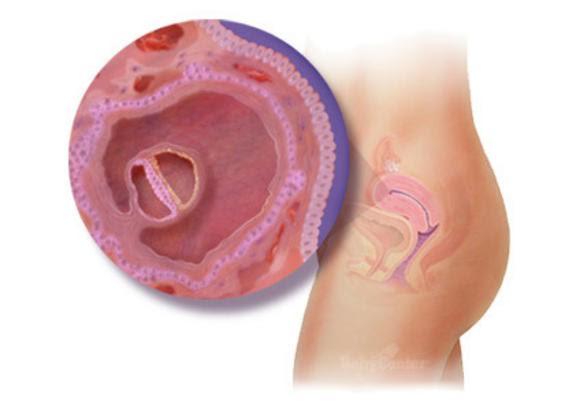 eerste symptomen zwanger